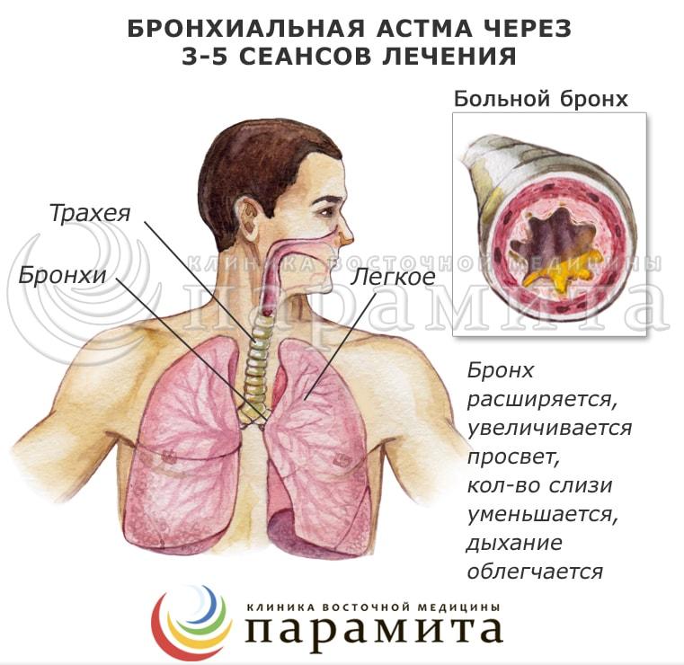 бронхиальная астма лечение иглоукалыванием отзывы